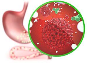 Головные боли - Хроническая интоксикация организма