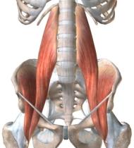 Грыжи дисков - Гипотония подвздошно поясничной мышцы